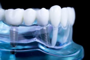 Clear model jaw with dental implants in Mt. Holly