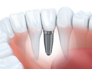 Dental implant in lower jaw