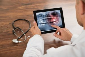 dentist examining digital x-ray